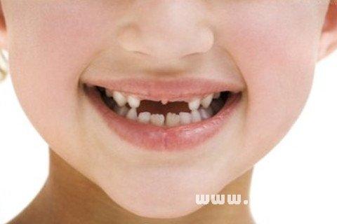 昨晚梦见牙齿全部掉光了!