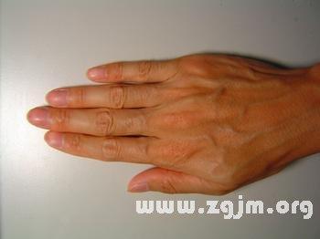右手背有痣代表什么_看相大全